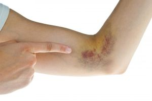Cách làm tan vết máu bầm lâu ngày nhanh nhất