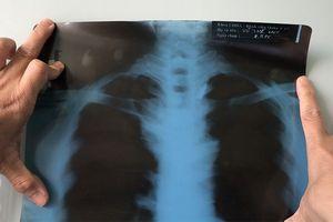Cứu người 'nuôi' viên đạn 40 năm trong ngực