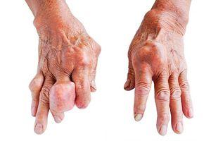 Nguyên nhân và triệu chứng thường gặp của bệnh gout