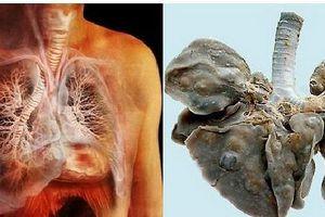 Nghiện cua nướng, sán làm tổ trong phổi