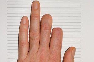 Bé gái 7 tuổi mọc lại ngón tay sau khi bị đứt