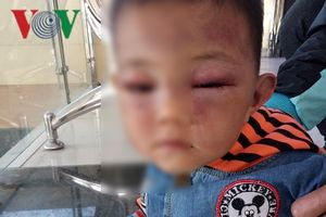 Làm rõ vụ việc bé trai 2 tuổi nghi bị cha dượng bạo hành đến nhập viện