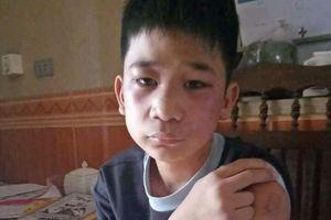 Hà Nội: Cậu bé bị bố và mẹ kế đánh bầm tím