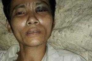 Thanh Hóa: Con trai dùng súng tự chế bắn bố nhập viện
