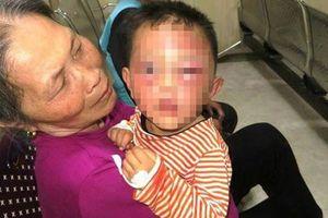 Nghệ An: Không xử lý hình sự bố dượng bạo hành con riêng của vợ