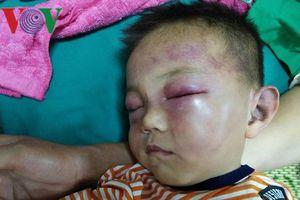 Vụ bé trai 2 tuổi bị đánh nhập viện: Không truy cứu cha dượng