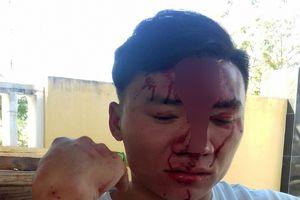 Kiểm lâm bị hai phụ nữ đánh gãy xương mũi