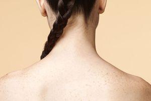Mụn mọc nhiều ở lưng: Nguyên nhân và cách điều trị?