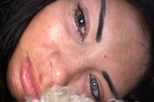 Tiêm silicone đổi màu mắt - một người mẫu suýt bị mù
