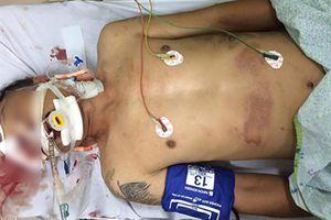 Dấu hiệu tội phạm trong vụ ô tô kéo lê nạn nhân ở ngã 6 Ô Chợ Dừa