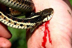 Nhiều sai sót của bác sĩ trong vụ bệnh nhân chết sau khi rắn cắn