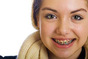 Niềng răng kiêng ăn gì?