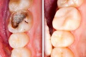 Phương pháp mới thay thế việc trồng răng giả