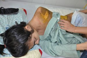 Số phận nghiệt ngã của nữ sinh lớp 11 bị xe tải cán qua người
