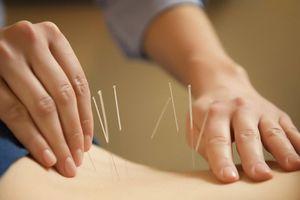 13 căn bệnh có thể hồi phục nhanh chóng nhờ châm cứu, giác hơi