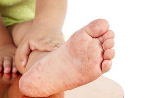 Chăm sóc trẻ bệnh tay chân miệng tại nhà: Những điều phụ huynh cần lưu ý