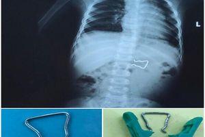 Bé trai 18 tháng suýt thủng ruột vì nuốt móc sắt kẹp áo