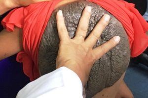 Bệnh lạ hiếm gặp ở Việt Nam, nhiều trường hợp y học bó tay