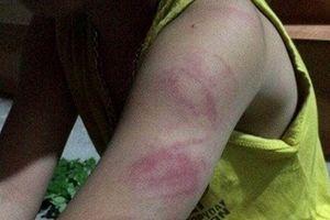 Học sinh lớp 1 bị đánh bầm tím tay vì không đọc thông viết thạo