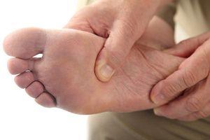 Cách trị chứng loét chân do bệnh tiểu đường