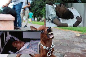 Những cái chết oan uổng của trẻ thơ do chó dại gây nên