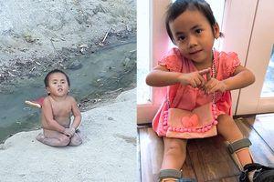 Vỡ òa trước hành trình thay da đổi thịt của em bé Mường Lát sau 5 tháng về 'nhà'