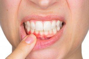 Điều gì xảy ra nếu bạn không đánh răng hàng ngày?