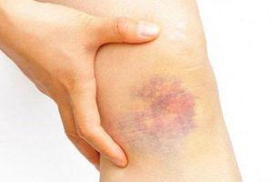 Xuất hiện những vết bầm bất thường bạn phải đến bệnh viện ngay