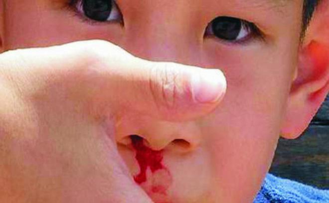 Trẻ bị chảy máu cam: Cẩn trọng với thời tiết mùa nắng