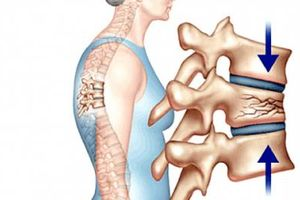 3 dấu hiệu nhận biết loãng xương không nên bỏ qua