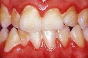 Cảnh giác với những bệnh lý răng miệng thường gặp ở phụ nữ mang thai