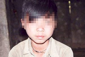 Những đứa trẻ bị 'giời hành' ở Hà Giang