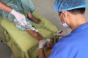 Chủ quan khi thấy vài mụn nước nổi ở chân, một bệnh nhân bị cắt nửa bàn chân