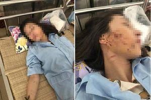 Khởi tố 3 bị can trong vụ đánh ghen bằng nước mắm, ớt bột ở Thanh Hóa
