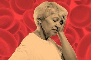 Những dấu hiệu thiếu máu nhiều người thường bỏ qua