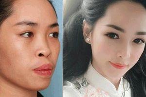 4 ca sửa mặt xấu thành tiên của chị em Việt khiến anh em ngỡ ngàng