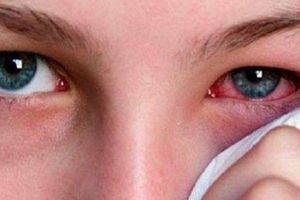Mùa World Cup: Cẩn trọng với vết máu đỏ trong mắt khi xem bóng liên tục