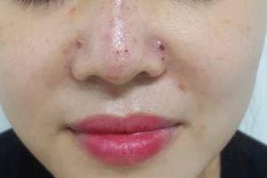Thêm một ca biến chứng sau khi tiêm filler nâng mũi tại spa