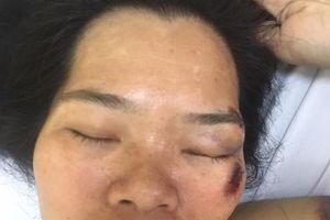 Tìm thân nhân người phụ nữ bị chấn thương sọ não được cấp cứu tại BV Việt Đức