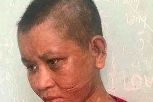 Hãi hùng người phụ nữ bị tra tấn tới biến dạng ở Gia Lai