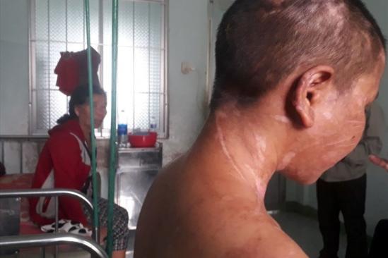 Bác sĩ Chiêm Quốc Thái nhận phẫu thuật miễn phí cho nạn nhân Y Nhiêu
