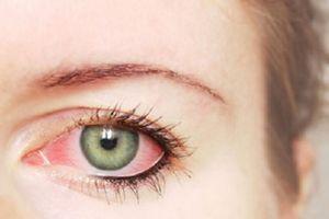 Coi chừng mù lòa cả đời khi mắt có những dấu hiệu này mà không đi khám