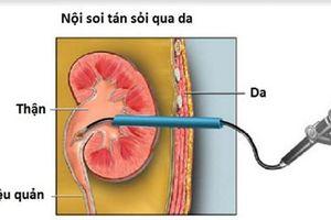 Phương pháp điều trị tận gốc bệnh sỏi thận