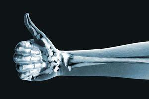 7 cách đơn giản giúp tăng cường sức khỏe xương