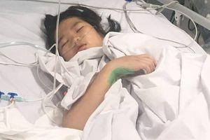 Cô bé 10 tuổi bị đứt rời chân sau tai nạn