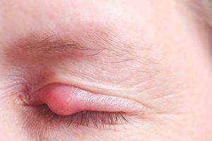 Cách giảm mưng mủ giúp vết thương mau lành nhanh nhất