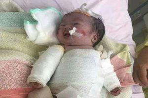 Xót xa tiếng khóc của bé gái 14 ngày tuổi toàn thân bong tróc vì căn bệnh hiểm nghèo