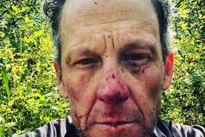 Cựu cua rơ Lance Armstrong gặp tai nạn khi đạp xe trên đường mòn