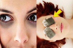 10 cách trị quầng thâm mắt bằng nguyên liệu tự nhiên
