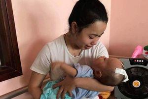 Bị mắc não úng thủy, mạng sống bé trai 8 tháng tuổi đang 'ngàn cân treo sợi tóc'